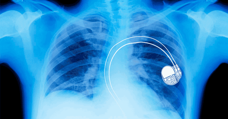 FDA Recalls Nearly Half a Million Pacemakers Over Hacking Fears