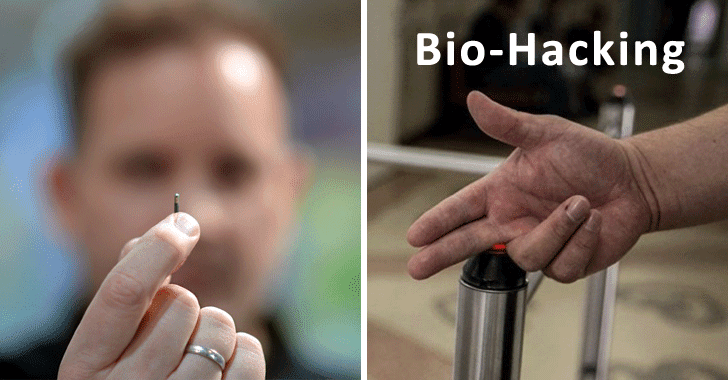 Doctor Implanted 6 MicroChips Under His Skin to Unlock Doors and Secure Data
